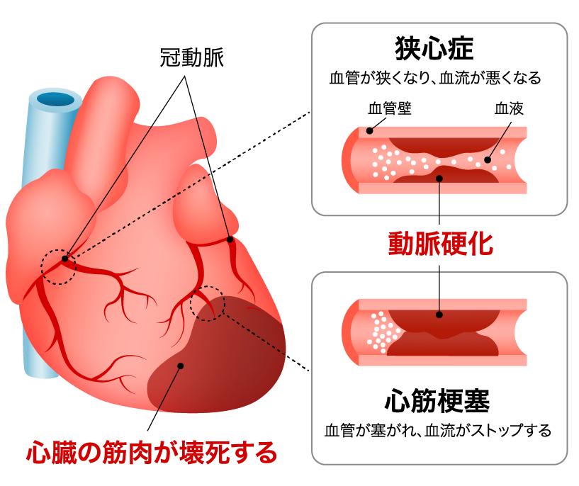 血性 心 疾患 と は 虚